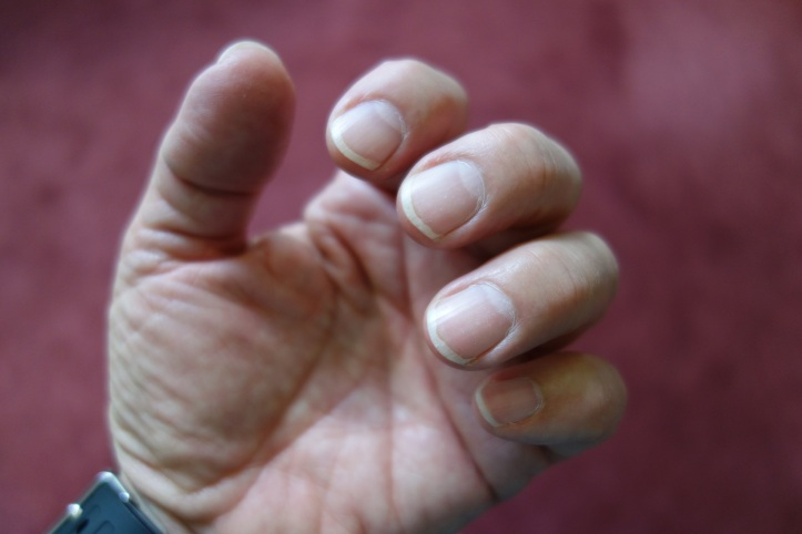 fingernails for self defense